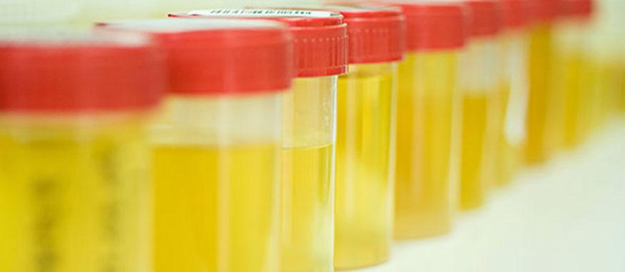 Sangramento na urina